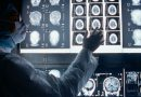腦部血管瘤可引起手腳麻痺